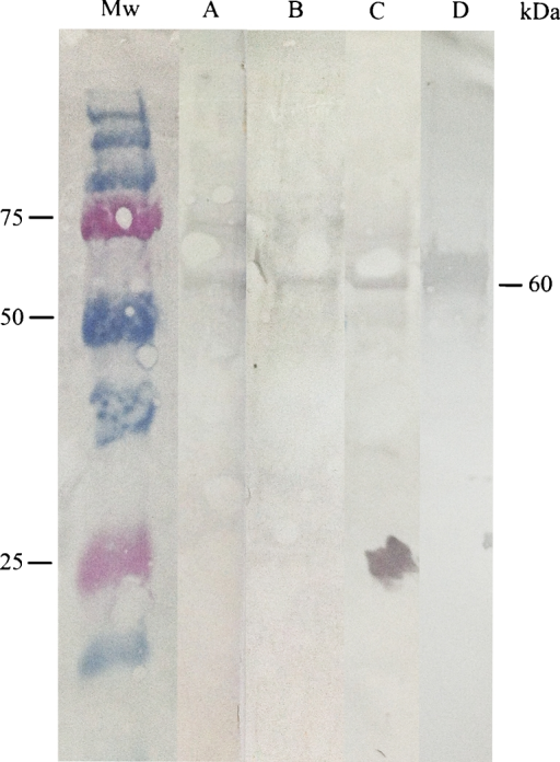Western blot (WB) analysis of IgG antibodies against an antigenic peptide (ompB) of Rickettsia helvetica. Lanes A, B and C demonstrate the specific reactions for each serum sample (S2) for patient nos. 6, 14 and 15 in Study 1 against the protein in the 60-kDa region. Lane D shows the specific reaction between the antigenic peptide and polyclonal rabbit anti-serum