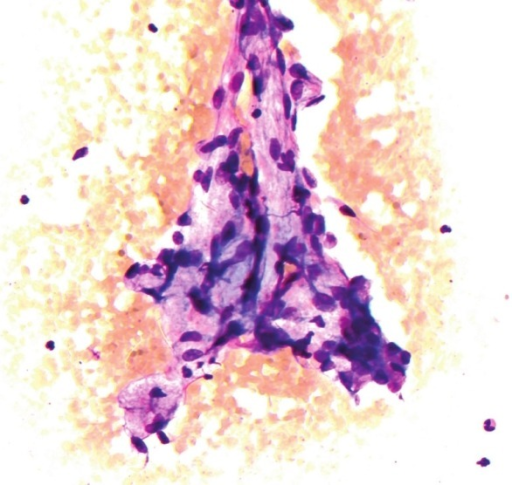 Hyaline stalks with overlying spindle cell with elongated oval nuclei and scant cytoplasm (Diff Quik stain, ×200)