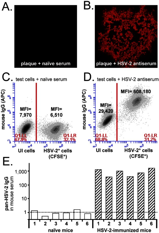Flow cytometry-based measurement of pan-HSV-2 IgG antibody levels.A and B. Immunofluorescent labeling of fixed HSV-2 plaques with a 1∶6,000 dilution of (A) naïve mouse serum or (B) HSV-2 antiserum obtained from mice immunized with HSV-2 0ΔNLS [53]. Mouse IgG binding was visualized with AlexaFluor594-labeled goat anti-mouse IgG (H+L). C and D. Two-color flow cytometric analysis of a fixed, single-cell suspension of CFSE-labeled, HSV-2-infected (HSV-2+) Vero cells mixed with uninfected (UI) Vero cells. Fixed cells were incubated with a 1∶6,000 dilution of (C) naïve mouse serum or (D) mouse HSV-2 antiserum and APC-labeled goat anti-mouse IgG, and were analyzed for CFSE (FL1) and APC (FL4) fluorescent intensity. E. Pan-HSV-2 IgG levels in the serum of n = 6 naïve mice versus n = 6 HSV-2 0ΔNLS-immunized mice, as determined by the ΔMFI between HSV-2+ and UI cells.