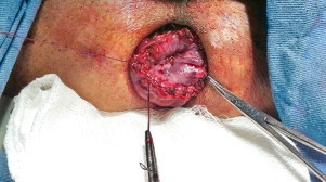 External colorectal anastomosis with two planes of absorbable suture.