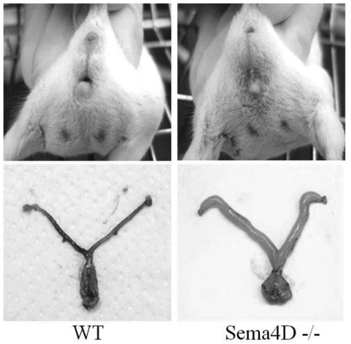Sema4D deficiency induces a closed vagina phenotype in BALB/c mice. During inspection, no vaginal orifice in the skin of the genital area in female Sema4D−/− mice was identified. This obstruction resulted in swelling around the genital region caused by severely distended genital tracts disclosed by the resection of the uterus and vagina. Sema4D, semaphorin 4D; WT, wild-type.