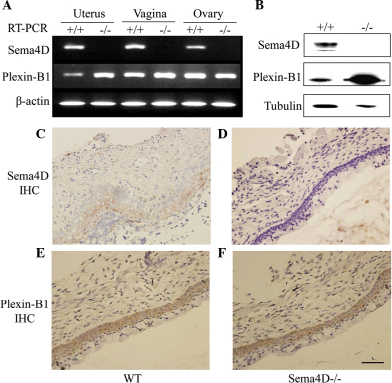 Sema4D and plexin-B1 are expressed in mouse vaginal epithelia. (A) Sema4D mRNA was detected by RT-PCR in the uteri, vaginas and ovaries of WT mice, but not in those of Sema4D−/− mice. Plexin-B1 mRNA was detected by RT-PCR in WT and Sema4D−/− vaginas. +/+, WT mice; −/−, Sema4D−/− mice. (B) Western blotting detected Sema4D in WT vaginas, but not in Sema4D−/− vaginas. Plexin-B1 protein was detected in WT and Sema4D−/− vaginas. +/+, WT mice; −/−, Sema4D−/− mice. (C) Immunohistochemical analyses with anti-Sema4D antibodies detected Sema4D in the suprabasal layer of the vaginal epithelia in WT mice (arrow). (D) IHC did not detect Sema4D in Sema4D−/− vaginas. (E) Plexin-B1 was detected in WT vaginal mucosa by immunohistochemical analysis using plexin-B1-specific antibodies (arrow). (F) Plexin-B1 was also detected in Sema4D−/− vaginal mucosa by IHC (arrow). Scale bar=50 μm. (Magnification of C-F, ×400). Sema4D, semaphorin 4D; WT, wild-type; RT-PCR, reverse transcription-polymerase chain reaction; IHC, immunohistochemistry.