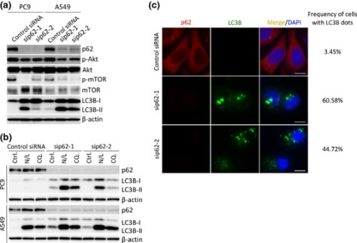 Effects of p62-silencing on autophagic activity. (a) PC9 and A549 cells were transfected with indicated siRNAs. After 3 days, protein homogenates were isolated and immunoblotting was used to measure p62, p-Akt, Akt, p-mTOR, mTOR, LC3B and β-actin. (b) PC9 and A549 cells were treated with ammonium chloride and leupeptin (N/L) or chloroquine (CQ.) and transfected with indicated siRNAs for 3 days. Protein homogenates were isolated and immunoblotting was used to measure p62, LC3B and β-actin. (c) Double immunofluorescent analysis of p62 and LC3B after indicated siRNAs transfection in PC9 cells. At least 100 cells were counted, and frequency of cells with LC3B dots was indicated. Scale bars, 10 μm.
