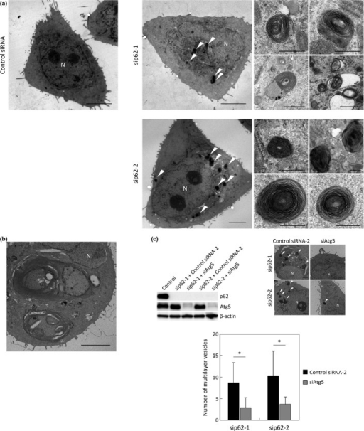 Effects of p62-silencing on morphological formation of autophagosomes. (a,b) PC9 cells were transfected with Control siRNA (upper left), sip62-1 (upper right and (b)) or sip62-2 (Lower right). Representative electron microscopical images of low and high magnifications were shown. N, nucleus. Triangles indicated autophagic vesicles. Scale bars, 5 μm (low magnification) or 0.5 μm (high magnification). (c) PC9 cells were transfected with indicated siRNAs for 3 days. After transfection, protein homogenates were isolated and immunoblotting was used to determine the levels of p62, Atg5 and β-actin. Representative electron microscopical images were also shown. N, nucleus. Triangles indicated multilayer vesicles. Number of multilayer vesicles per each cell (at least 30 cells) was counted. Scale bars, 2 μm. *P < 0.05.