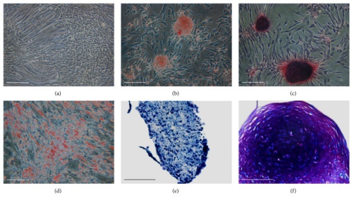 Assessment of trilineage differentiation. (a) Control. Cells maintained in control medium for 21 days. (b-c) Assessment of osteogenic differentiation. (b) Histochemical localization of ALP. Osteoinduced cells formed numerous nodules highly positive for ALP staining. (c) Positive Alizarin Red S staining by day 21 whereas red calcium nodules clearly appeared on the osteoinduced cultures. (d) Assessment of adipogenic differentiation. Positive Oil Red O staining by day 21 confirmed the presence of lipid droplets only in adipogenic-induced cells. (e-f) Assessment of chondrogenic differentiation. Histological sections of pellets after 21 days in the presence or absence of rhTGF-β1. (e) Control pellets incubated without rhTGF-β1. (f) Pellets incubated with rhTGF-β1 clearly displayed improved chondrogenesis with positive toluidine blue staining. Bars 200 μm in (a–d) and 100 μm in (e-f).