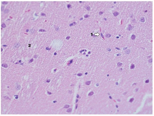 Histological image of hippocampus in animals in group IPDE (enlargement 400x). In the analyzed material the decrease of intensity of neurodegradation changes in neurons is observed; in the lumen of capillary vessels, there are numerous erythrocytes visible in rouleau formation (1), which may indicate the presence of venostasis; the foam structure between neurons is more poorly expressed (2).