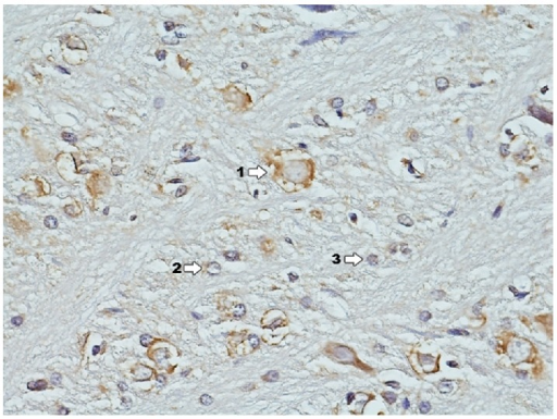 Immunohistochemical reaction towards ERα in the structures of hippocampus and dentate gyrus in group C (enlargement 400x). Clear expression of ERα concentrates in large multipolar nerve cells—ganglia (1); a smaller degree of expression is in granular cells (2) whereas there is lack of it in glia cells (3); border between white and grey matter.