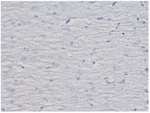Immunohistochemical reaction towards ERα in the structures of hippocampus and dentate gyrus in group IPDE (enlargement 400x). No expression of ERα.