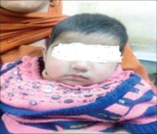 6-month-old baby with no facial dysmorphism