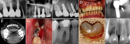 A) Inflammation and resorption of the bone surrounding the implant; B) Sinus perforation during implantation; C) Inappropriate case selection and placement of implant adjacent to a cariously involved root; D) Unsatisfactory esthetic following implant placement in anterior portion of maxilla; E) Neglecting the inclination of the second mandibular molar and food impaction between the tooth and implant. The dentist tried to expand the composite restoration of the second molar to make a contact between the tooth and the implant, but the patient still suffers from food impaction in that area; F) Metallic artifacts due to amalgam in posterior teeth has led to difficulty in observation of adjacent areas: compare the axial view of the anterior teeth to the posterior teeth; G-I) Split root and impossibility of restoration makes it very difficult to impossible to treat and place post-core crown for the first mandibular molar; J) Severe root resorption in maxillary right incisor makes it impossible to keep the tooth