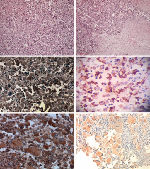 Morphological characteristics of LCS. Hematoxylin and eosin staining evidenced that the tumor cell with longitudinal nuclear groove and high mitotic rate was observed (A and B), (hematoxylin–eosin staining, magnification ×100); the tumor cells were positive for langerin (C), CD1a (D), CD68 (E), and S-100 protein (F). LCS = Langerhans cell sarcoma.