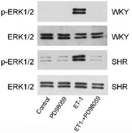 ET-1-induced phosphorylation of ERK1/2 was blocked by PD98059.