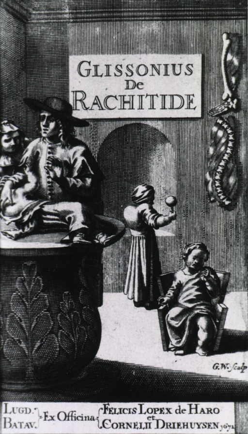 <p>Glisson examines child with rickets as the mother looks on.  Two more children with rickets play in the background and bones deformed by rickets hand on the wall.</p>