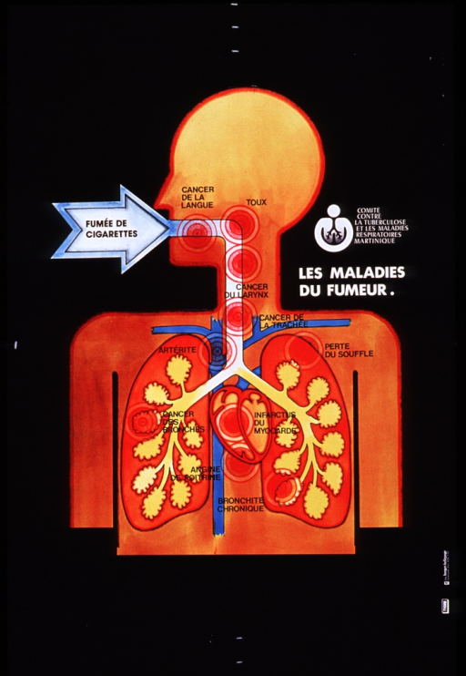 <p>Black poster with yellow-orange illustration of a human head and torso showing alimentary canal, lungs, and heart.  Large white arrow reading &quot;fumee de cigarettes&quot; (i.e., cigarette smoke) points into mouth.  Then at appropriate points along the lower respiratory tract, names of smoking-related illnesses appear, including cancer of the tongue, larynx, trachea, and lungs, plus cough, shortness of breath, arteritis, myocardial infarction, angina pectoris, and chronic bronchitis.  Title in white lettering on right side of poster, above shoulder.  Logo for the Comite contre la tuberculose et les maladies respiratoires Martinique appears above title.</p>