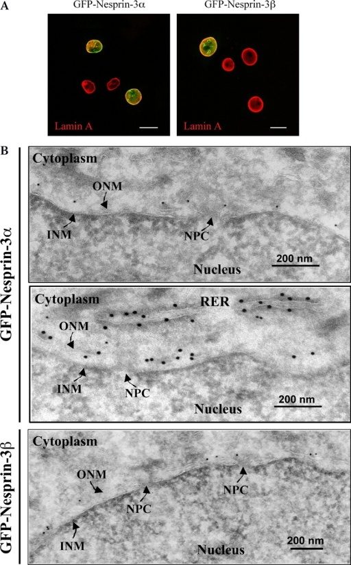 Subcellular localization of nesprin-3α and -3β. (A) To determine the subcellular location of nesprin-3, PA-JEB keratinocytes were transiently transfected with either GFP-nesprin-3α or -3β cDNA, and the expression pattern was analyzed by fluorescence microscopy. Immunofluorescence studies of endogenous lamin A were performed using mAb 133A2. Bar, 20 μM. Four cells are shown in each image. (B) To determine which lipid bilayer of the NE contains nesprin-3, ultrathin sections of PA-JEB cells stably expressing either nesprin-3α (top and middle) or -3β (bottom) were labeled with rabbit pAbs against GFP, followed by incubation with 15-nm gold-conjugated protein A. NPC, nuclear pore complex.