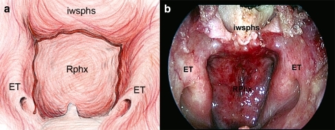 a, b Entering the choana, the rhinopharinx and the Eustachian tube have been bilaterally visualized (iwsphs inferior wall of sphenoid sinus, ET Eustachian tube, Rphx rhinopharinx)