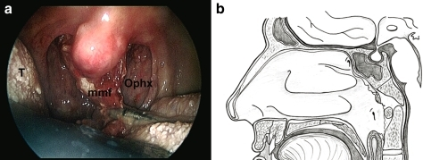 a The muscle-mucosal flap is transposed in the oropharinx. b Schematic drawing showing the exposure of the cranio-vertebral junction after replacing the flap. (Ophx oropharynx, mmf muscle-mucosal flap, T tongue)