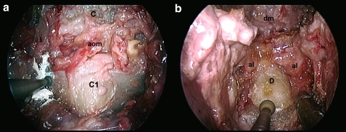 a The anterior arch of the atlas has been removed. b The dens has been exposed. (C clivus, aom atlanto-occipital membrane, C1 atlas, dm dura mater, al alar ligament, D dens)