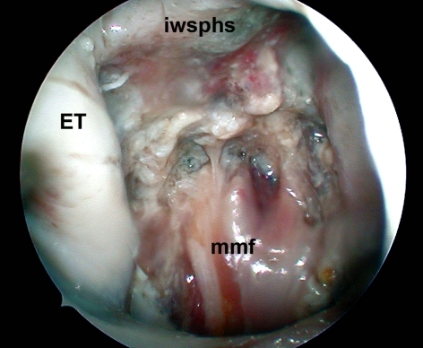 The muscle-mucosal flap is replaced in the rhinopharinx (iwsphs inferior wall of sphenoid sinus, ET Eustachian tube, mmf muscle-mucosal flap)