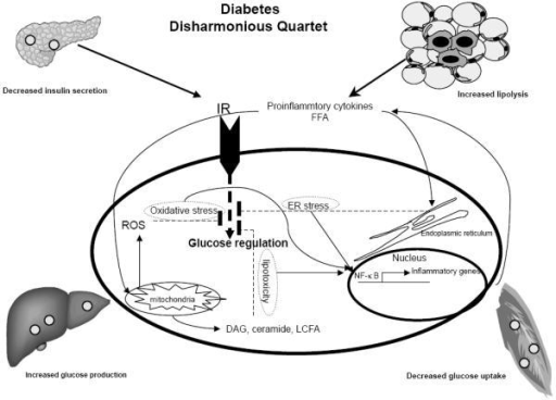 Diabetes is characterized by decompensated insulin secretion for insulin resistance at target organs including adipose tissue, liver and muscle. Insulin resistance is associated with increased proinflammatory cytokines. Inflammatory pathways in insulin resistance can be initiated by extracellular mediators such as cytokines and free fatty acid (FFA) or by intracellular stresses such as ER stress, excess ROS production by mitochondria or lipotoxicity. Activation of NF-κB pathway leads to induction of chemokines that recruit inflammatory cells, such as macrophages. (FFA Free fatty acid, ER Endoplasmic reticulum, DAG diacylglycerol, LCFA long chain fatty acid, IR insulin receptor).