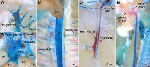 Hoxa3-lacZ expression in major blood vessels. (A-E) Prominent expression (blue) was detected by whole-mount X-Gal staining of 6 wk old Hoxa3-lacZ transgenic mice in external jugular vein (panel A), aortic arch (AA) and all major vessels in the aortic arch region including innominate and left carotid artery, pulmonary vein (PA), and subclavian artery (panel B); strong expression was also detected in the descending thoracic aorta (DA) and intercostal arteries (panel C), as well as the common iliac artery and proximal femoral artery (panel D); Hoxa3-lacZ expression in the common carotid artery exhibits a distinct anterior boundary near the branch point into facial and occipital carotid arteries (panel E); anterior points to the top in panels A-C, and E, and to the right in panel D; please note the distal expression boundary in the femoral artery just below the branch point of the internal iliac. LA: left atrium; LV: left ventricle; RA: right atrium; thy: thyroid gland.