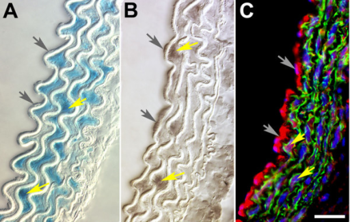 Comparison of Hoxa3-lacZ reporter and endogenous Hoxa3 protein expression in VSMCs and ECs of aortic arch. (A) Cross section of aortic arch from adult Hoxa3-lacZ mouse after X-Gal-staining indicates reporter gene expression (blue) in VSMCs (yellow arrows) whereas expression in cells of the endothelial layer (gray arrows) is difficult to discern. (B) Immunohistochemical detection of Hoxa3 in comparable section of adult (8 wk) dorsal aorta; immunolabeling of section with anti-Hoxa3 antibodies and subsequent colorimetric detection (DAB-Ni) reveals expression in ECs (gray arrows) and vascular VSMC (yellow arrows). (C) Multichannel composite micrograph of adult aortic arch section after incubation with immunoreagents specific for Hoxa3 (Cy5-red) and Acta2 (Cy3- green), and Hoechst 33342 for nuclear labeling. The bright red labeling in ECs (gray arrows) confirms Hoxa3 expression. The purple labeling in the media indicates Hoxa3 expression in certain nuclei of VSMCs (yellow arrows). Green label indicates that Acta2 expression is restricted to the media. Lumen is to the left in all panels; space bar: 25 μm.