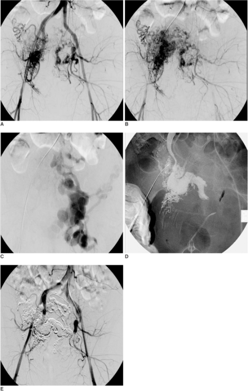 38-year-old woman (patient 8) with uterine arteriovenous malformations that caused massive vaginal bleeding.A-C. Pretreatment posteroanterior pelvic angiogram shows large arteriovenous malformations in uterus with dilated draining veins.D. Two sessions of transarterial approach with using ethanol were not effective for managing vaginal bleeding. One session of direct puncture of uterine arteriovenous malformations and NBCA (n-butyl cyanoacrylate) embolization was performed to stop the vaginal bleeding.E. Final posteroanterior pelvic angiogram shows complete obliteration of arteriovenous malformations.