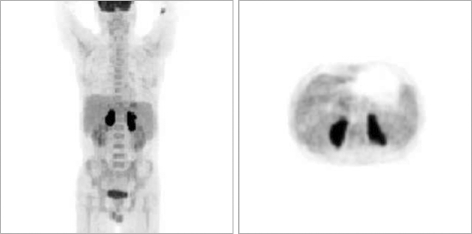 F-18 fluorodeoxyglucose (FDG) positron emission tomography (PET) scan showing intense FDG accumulation in both adrenal glands. There was no abnormal FDG uptake in the rest of the body.