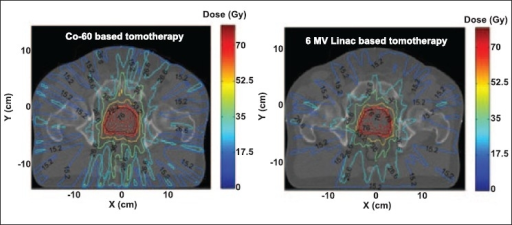 Tomotherapy plans for Co-60 and 6 MV beams for a prostate case, achieved by modulating the intensity of 210 beamlets (10 beamlets per orientation and 21 equally spaced field orientations)