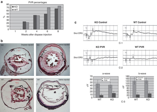 Development of clinical PVR in Rag-1 KO and WT mice after dispase injection. A total of 10 mice in each group were injected intraocularly with 0.2 U/μl dispase. At the time points specified, the eyes were examined for: (a) macroscopic presentation of PVR symptoms; and (b) histological evidence for PVR as established on H&E-stained sections. (c) Skot ERGs recording α- and β-wave amplitudes. The contralateral untreated eyes were used as controls. The data in both panels represent the cumulative results obtained on 25 Rag-1 KO mice after dispase injection.