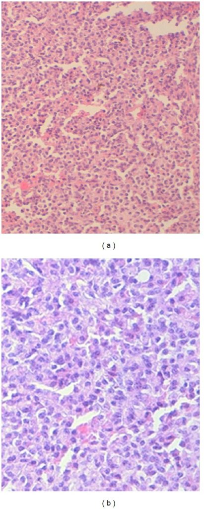 (a) and (b) thyroid parenchyma is infiltrated by a diffuse sheet of neoplastic cells that have an abundant cytoplasm and an eccentric and irregular nucleus.