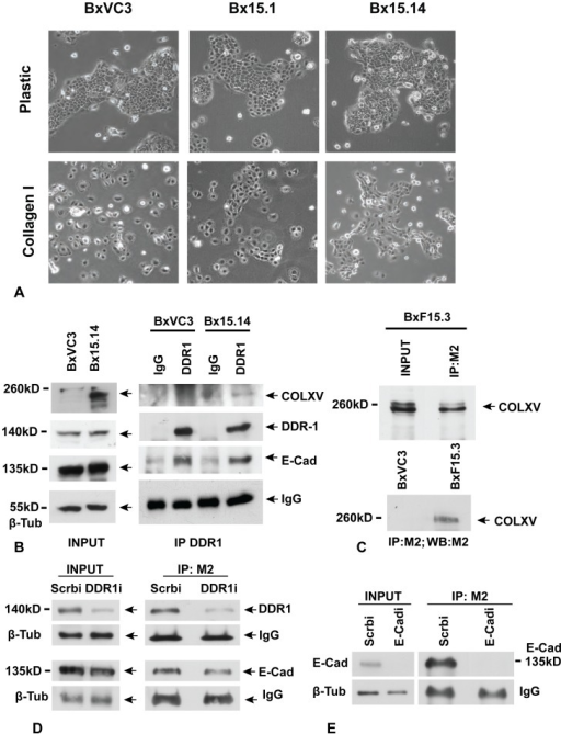 Collagen XV inhibits scatter of BxPC-3 cells on a collagen I substrate and interacts directly with DDR1 and E-Cadherin.A) Vector control (BxVC3) and COLXV expressing (Bx15.1, Bx15.14) clones are shown grown on plastic substrate and on COLI coated substrate. Phase contrast microscopy, all panels 100X magnification. 3 vector clones and 5 COLXV expressing clones (2 with low expression and 3 with high expression) were analyzed at least 3 times and the results were consistent. B) Immunoprecipitation (IP) of DDR1 from vector clone (BxVC3) and COLXV clone (Bx15.14), followed by probing of western blots of the IP material with antibodies specific for COLXV, DDR1 and E-Cad. C) IP of FLAG-tagged COLXV (FCOLXV) from the BxF15.3 clone using the M2 antibody. D) IP of COLXV from clone Bx15.3 with M2 after depletion of DDR1 with a specific siRNA (DDR1i) or transfection of scrambled control siRNA (Scrbi). Depletion of DDR1 reduced the amount of DDR1, but not E-Cad, interacting with COLXV. E) IP of COLXV from clone BxF15.3 with M2 after depletion of E-Cad with a specific siRNA (E-Cadi) or transfection of scrambled control siRNA (Scrbi). Depletion of E-Cad reduced the amounts interacting with COLXV. All experiments were performed a minimum of 3 times with consistent results.