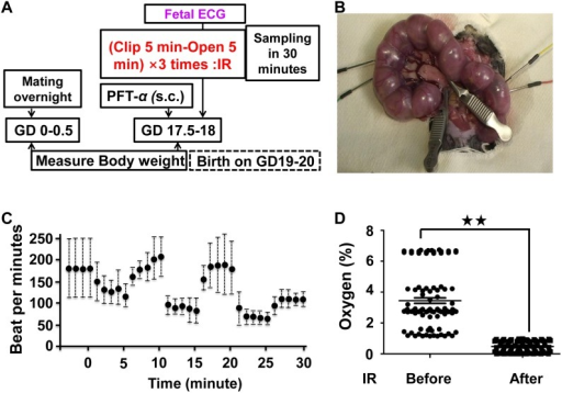An ischemic reperfusion in pregnant mice.(A) Experimental design (B) No IR treatment pregnant mice and Ischemic reperfusion (IR) mice underwent surgery on day 18 of gestation. (C). Fetal electrocardiography (FECG) was used to monitor the conditions of both the mother and the fetuses in either clipped or non-clipped uterine horns (n = 5 fetuses from at least 5 individual pregnant mice). (C) Measurement of oxygen concentration in the amniotic fluid before and after IR (p<0.01 indicated as two stars, n = 5 fetuses from at least 3 individual pregnant mice).