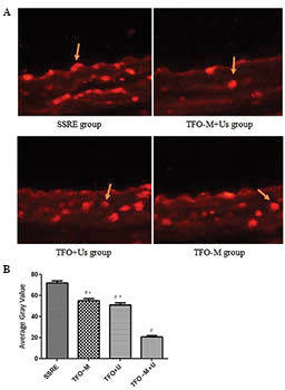 Immunofluorescence assay of tissue factor protein in vivo. (A) In vivo expression of tissue factor protein was detected by immunofluorescence microscopy (magnification, ×400). The arrows indicate positive immunofluorescence of tissue factor protein in endothelial cells of the carotid artery. (B) Average gray value in the SSRE, TFO-M, TFO+U and TFO-M+U groups. The values represent the means ± standard deviation, n=6 per group. #P<0.01 as compared with the SSRE group; *P<0.01 as compared with the TFO-M+U group. TFO, triplex-forming oligonucleotides; M, microbubble; U, ultrasound; SSRE, shear stress response element.