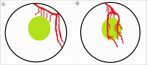 (A) Schematic diagram: In the transtemporal approach, the hematoma (circle) is located between the lenticulostriate artery (LA) and M2. (B) Schematic diagram: In the transsylvian-transinsular approach, the M2 branches are initially dissected and retracted. The LA, as a responsible vessel, is located at the anterior route (left).