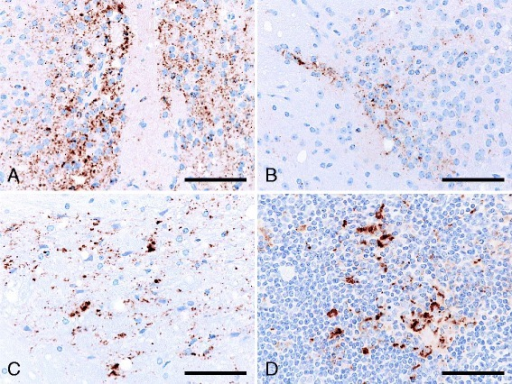 Immunolabeled PrPSc accumulation in the brain and lymph node of ICR mice infected with sheep-passaged L-BSE, at first passage. PrPSc accumulated in the brain of the medial preoptic nucleus (A), habenular nucleus (B), and midbrain tegmentum (C), and in the follicular dendritic cells within the secondary follicle of renal lymph node (D) of a mouse killed at 710 days post-inoculation. Immunohistochemical labeling with mAb SAF84 and hematoxylin counterstain. Scale bar = 25 μm.