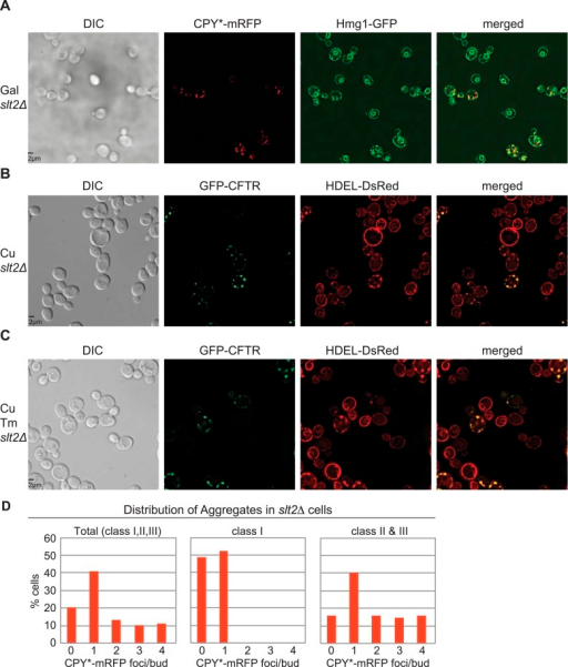 Colocalization of ER and CPY* or CFTR in slt2Δ cells.(A) Representative field of Hmg1-GFP-expressing slt2Δ cells treated with galactose (Gal) for 2 hr to induce expression of CPY*-mRFP. (B) Representative field of DsRed-HDEL-expressing cells treated with 100 μM copper (Cu) for 2 hr to induce expression of GFP-CFTR. (C) Representative field of DsRed-HDEL-expressing cells treated with 100 μM copper (Cu) and Tm for 2 hr to induce expression of GFP-CFTR. Note that slt2Δ cells do not exhibit a block in ER inheritance under ER stress. (D) Distribution of CPY*-mRFP aggregates per bud in all (Total), class I, and class II + III cells.DOI:http://dx.doi.org/10.7554/eLife.06970.009