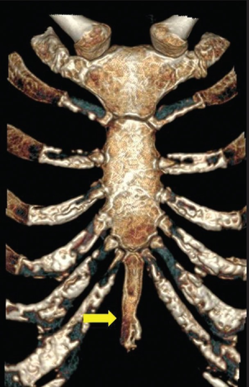 Coronal Volume Rendered Image Of Sternum Shows An Elong Open I