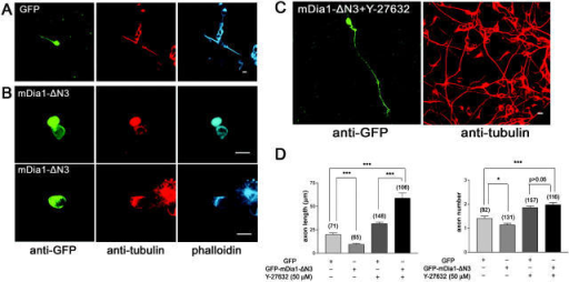 DA mDia1 facilitates axon elongation. Morphology of cerebellar granule cells overexpressing GFP (A), GFP-mDia1-ΔN3 alone (B), or GFP-mDia1-ΔN3 in the presence of Y-27632 (C). When ROCK activity was reduced, expression of GFP-mDia1-ΔN3 resulted in a significantly enhanced elongation (D, left) of axons (n ≈ 65–157) compared with EGFP-expressing controls (A). Overexpression of GFP-mDia1-ΔN3 alone successfully induced an axon, which, however, exhibited a significantly altered shape (enlarged width, premature stop), presumably due to an increased actin stability in the presence of intact ROCK activity (B). Basal ROCK activity, in the context of excessive mDia1 activity, might cause a prominent increase in actin polymerization, while also sustaining a tonic level of actomyosin contractility, thereby negatively acting on axon elongation. *P < 0.05; ***P < 0.001. Bars, 5 μm.