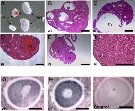 Ovarian phenotype of the Prep1i/i mice.(A) Image showing the developmental failure of Prep1i/i ovaries. Ovaries were smaller in size (compare i/i versus wt), and in almost half of the ovaries analyzed a cyst was observed (arrowhead). (B–D) Haematoxylin and eosin staining of Prep1i/i ovarian sections (C and D) showing the cyst (Cy) formation and the reduced number of follicles compared with Wt (B). Notice that most of the follicles found in Prep1i/i section (D) were primary or secondary follicles. (E) Absence of developed ovary. The asterisk marks the structure that might correspond to the undeveloped ovary. (F) Higher magnification of a non developed ovary, where no follicles were detected. (G–I) Hoxb4 immunostaining of mouse oocytes. Notice the strong staining present in the Prep1i/i oocyte compared with wild-type. The control (I) was performed without primary antibody. Scale bars, B–E 25 µm; F 15 µm; G–I 10 µm.