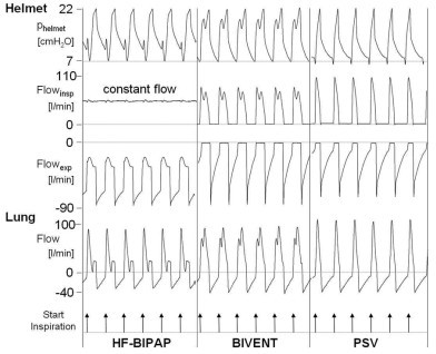 Original tracing of helmet and airway (lung) flow and pressure during HF-BiPAP, BIVENT, and PSV. Compliance was 90 ml/cm H2O, resistance was 3 cm H2O/l/s, at high inspiratory effort, respiratory rate was 30 breaths per minute and delta pressure was 15 cmH2O. Note: During HF-BiPAP inspiratory flow to the helmet was constantly high at about 60 l/minute. Expiratory flow did not become zero due to the high constant free flow. BiVent = time-cycled pressure controlled switching between two continuous positive airway pressure levels; HF-BiPAP = high flow biphasic positive airway pressure; PSV = pressure support ventilation.