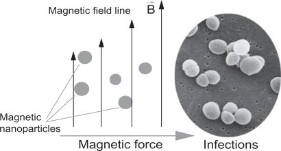 A simplified design for a magnetic drug delivery system in which magnetic nanoparticles coated with drugs are directed to infection sites by an external magnetic field.