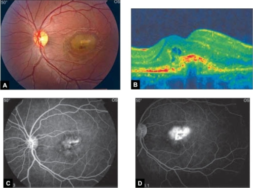 Left eye at presentation. (A) Color fundus photograph shows subfoveal choroidal neovascular membrane (CNVM) with subretinal heme, (B) transverse OCT shows intraretinal fluid that is consistent with an active CNV, (C) fundus fluorescein angiogram, early phase shows a well-defined hyperfluorescent area corresponding to the CNVM OS and (D) late phase shows diffuse leakage.