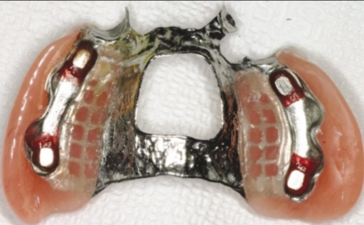 Magnets were embedded in the denture.