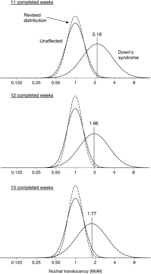 Relative frequency distributions of nuchal translucency (NT) multiple of the median (MoM) values in Down's syndrome and unaffected pregnancies according to gestational age. Solid line is previous distribution and dashed line is revised distribution. Median MoM in Down's syndrome pregnancies at vertical line