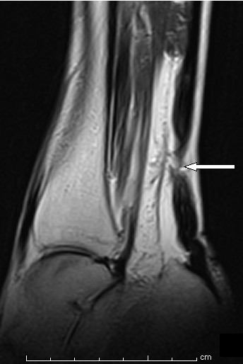 Sagittal view magnetic resonance imaging (MRI) scans of the patient's right ankle showing rupture of the Achilles tendon.