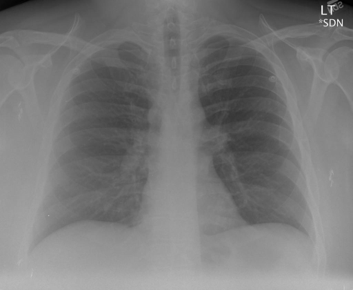 PA and Lateral Chest Radiograph XXXX, XXXX at XXXX p.m.
