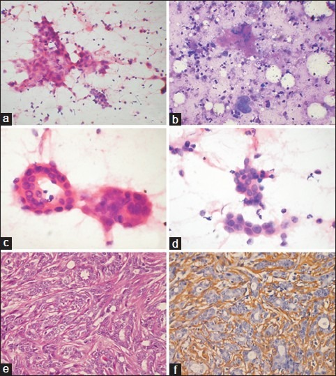 Nodular sclerosing adenosis: Cytomorphological and corresponding histological features. (a) Irregular cohesive clusters of cells along with naked nuclei and bipolar cells in the background; (b) Hyalinized eosinophilic stromal fragments; (c) Acinar formation; (d) Moderate nuclear pleomorphism and nucleoli; (e) Histological section showing tubular arrangement showing atypia, compressed by stroma; (f) Immunohistochemistry showing SMA positivity (a, c, d, e, H and E ; b, MGG ; f, immunoperoxidase; original magnification: a, b, ×200; c-f, ×400)