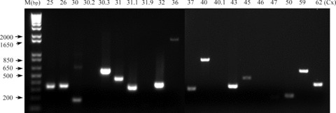 Example of an RT-PCR survey of human cumulus cells for connexin mRNAs. Primers and amplification conditions were optimized for each of 20 connexin sequences. All PCR products were run on a 1.2% agarose gel. All but Cx30.2, Cx31.9, Cx40.1, Cx46 and Cx47 mRNAs were detected.