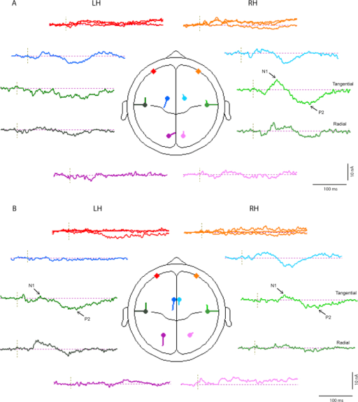 Source waveforms and locations for 4 pair model of (A) left and (B) right ear stimulation at supra-threshold intensity applied to the sub-threshold data.